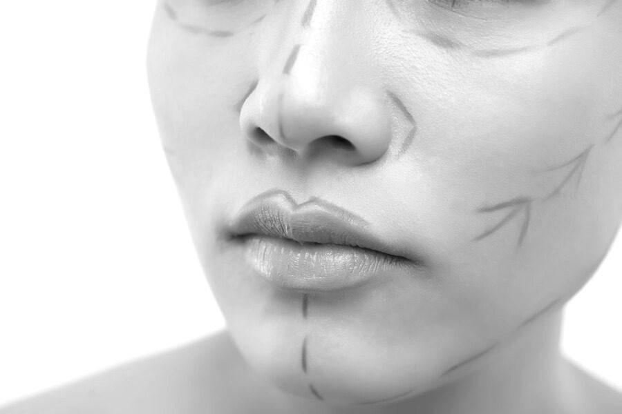 ansikte-bichectomi